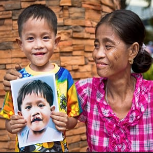 Operation Smile UK